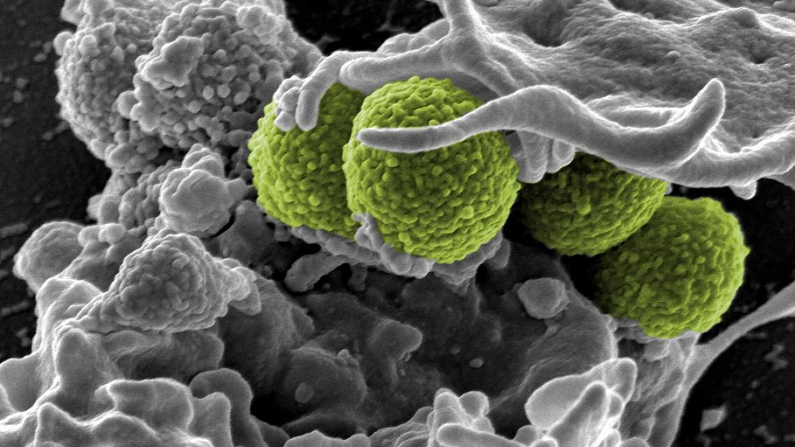 Methicillin-resistant Staphylococcus aureus, a bacteria commonly acquired in hospitals