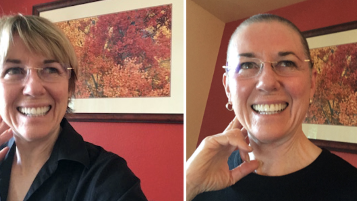 The Zen of learning to love the buzz cut — an example of post-traumatic growth