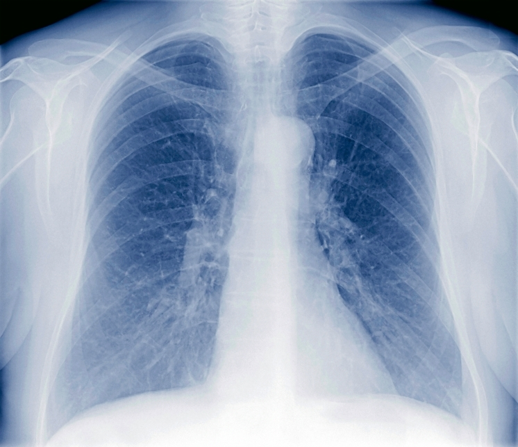 tuberculosis in silicon valley center for health journalism