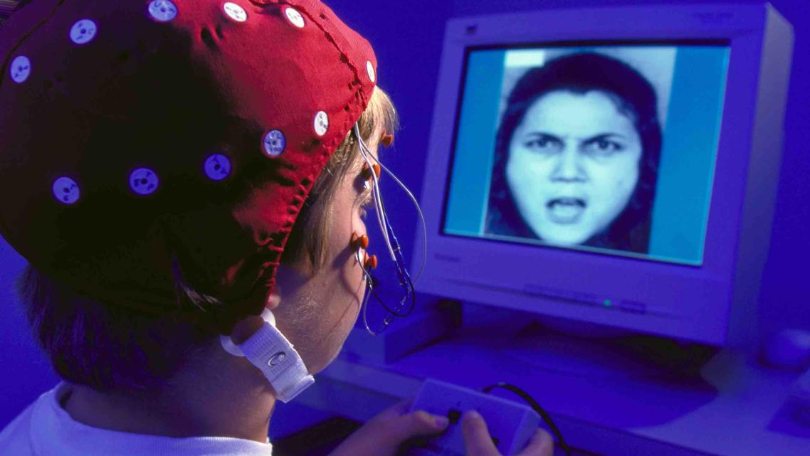 Researchers measure a child's brain activity while viewing facial expressions — abused children are more likely to view ambiguous faces as angry. (Photo courtesy of the Child Emotion Lab/University of Wisconsin Madison)