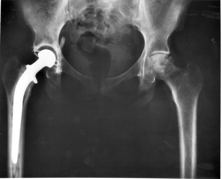 hip replacement, medical devices, patient safety, reporting on health, health journalism