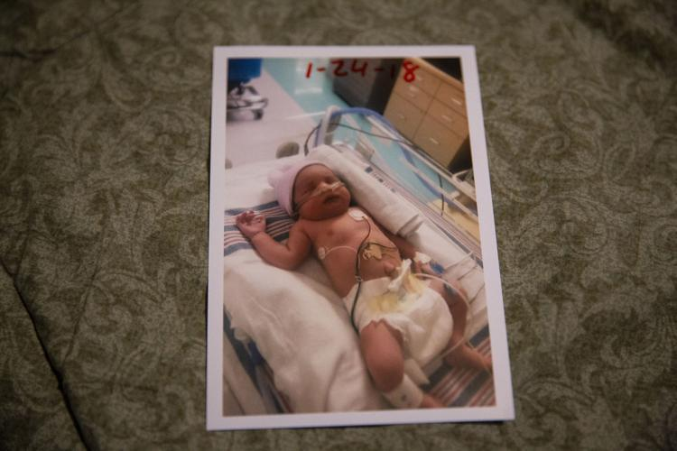 Jasmin is shown in the hospital after she was born prematurely. [Photo by Angela Piazza]