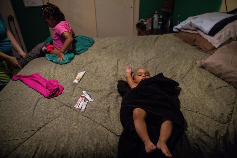 Various prescription and non-prescription ointments for Tiana, left, and Jasmin lie between them on the master bedroom bed after the girls' bath. Angelica gets the 2-year-old dressed while the 6-month-old waits patiently. [Photo by Angela Piazza]